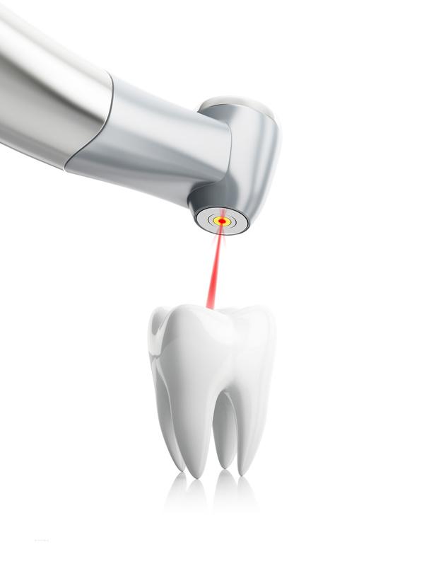 Zahnarzt-Laser